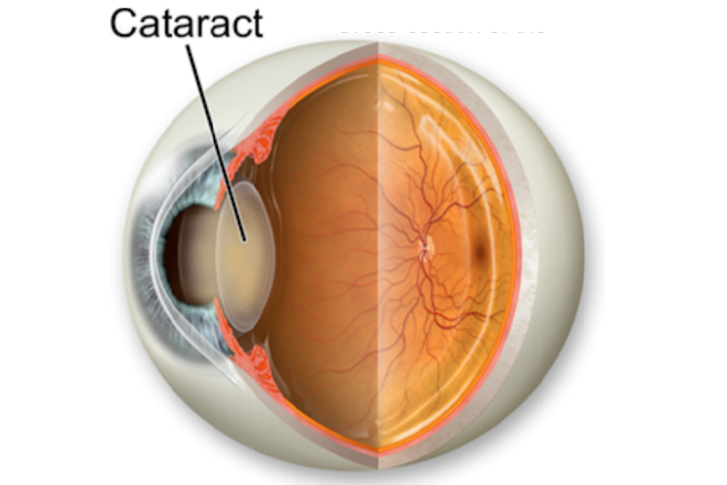 Cataract image